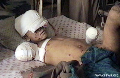 http://revolutionaryfrontlines.files.wordpress.com/2010/12/afghanistan-civilian-casualties.jpg